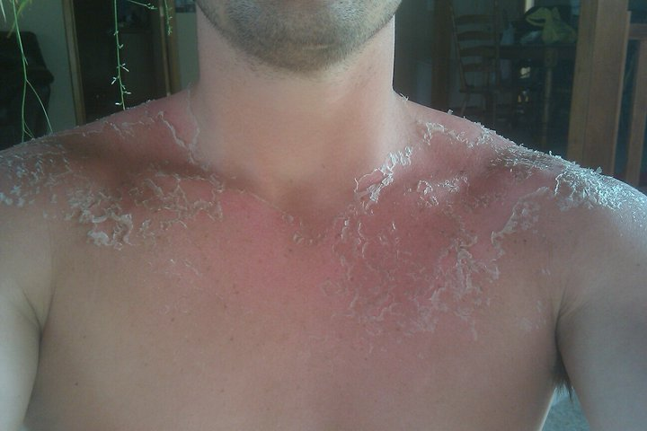 Sunburn Aftermath